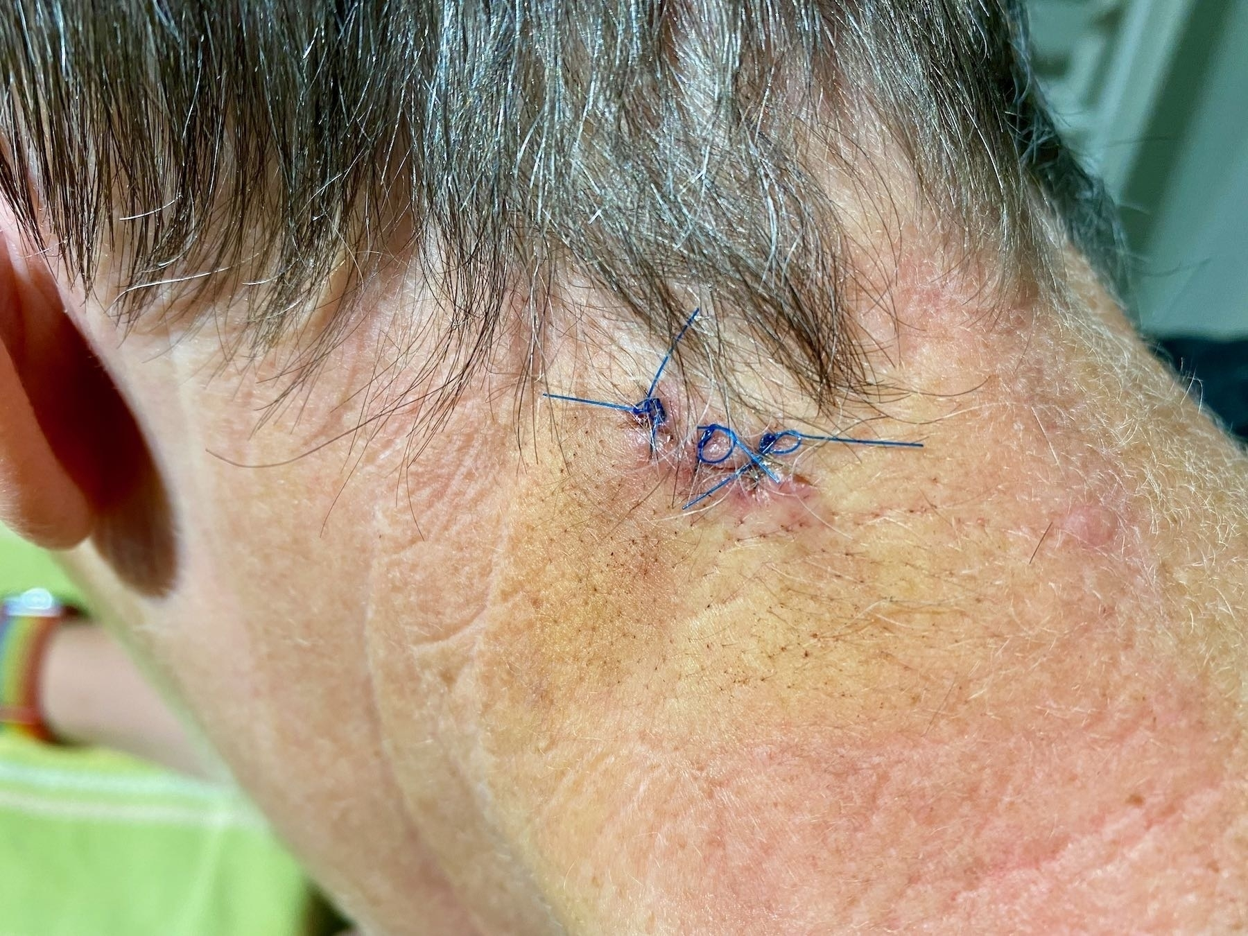 Stitches in a small wound.